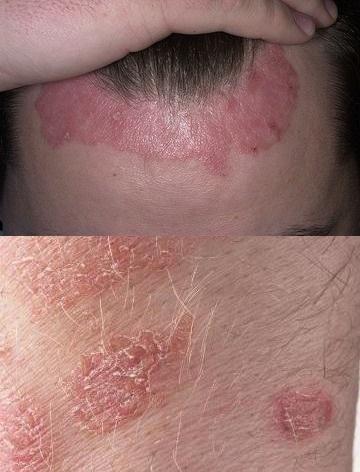 Eczema yang bisa mengenai bayi dan dewasa.